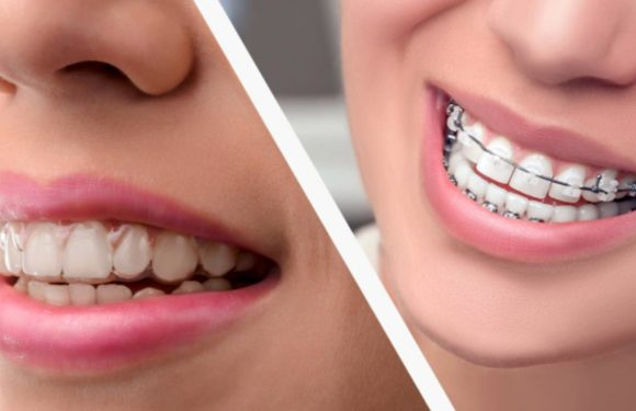 Restore Your Smile and Oral Health with Top Quality Clear Aligners Treatment in Texas