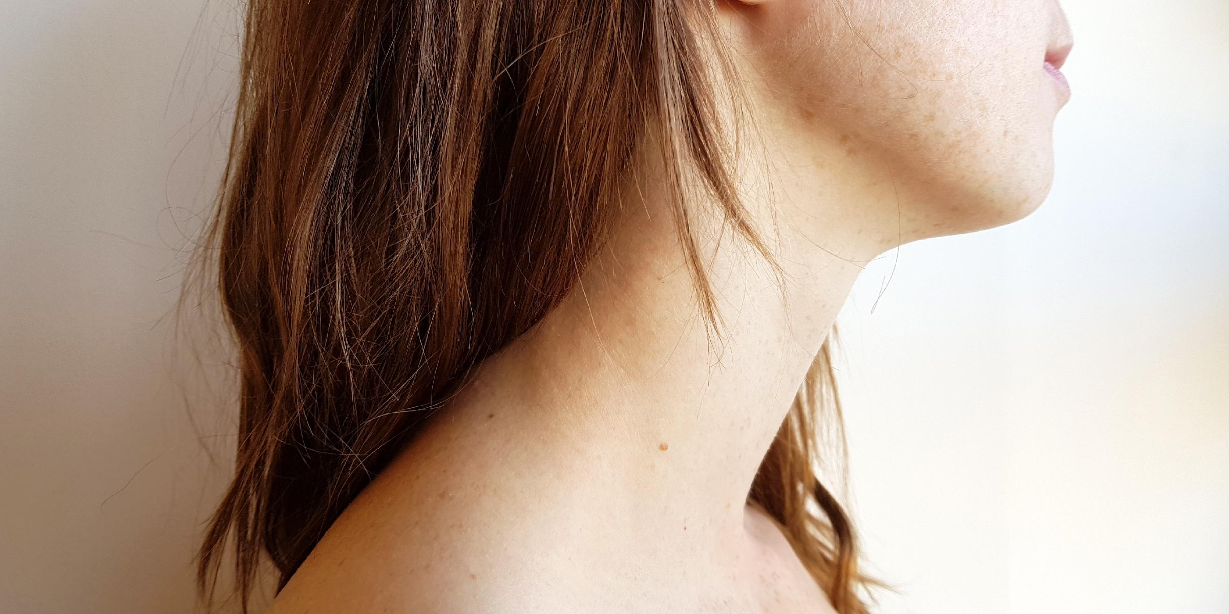 A Closer Look At Hyperthyroidism