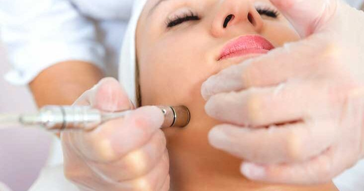 How Does Microdermabrasion Procedure Work?