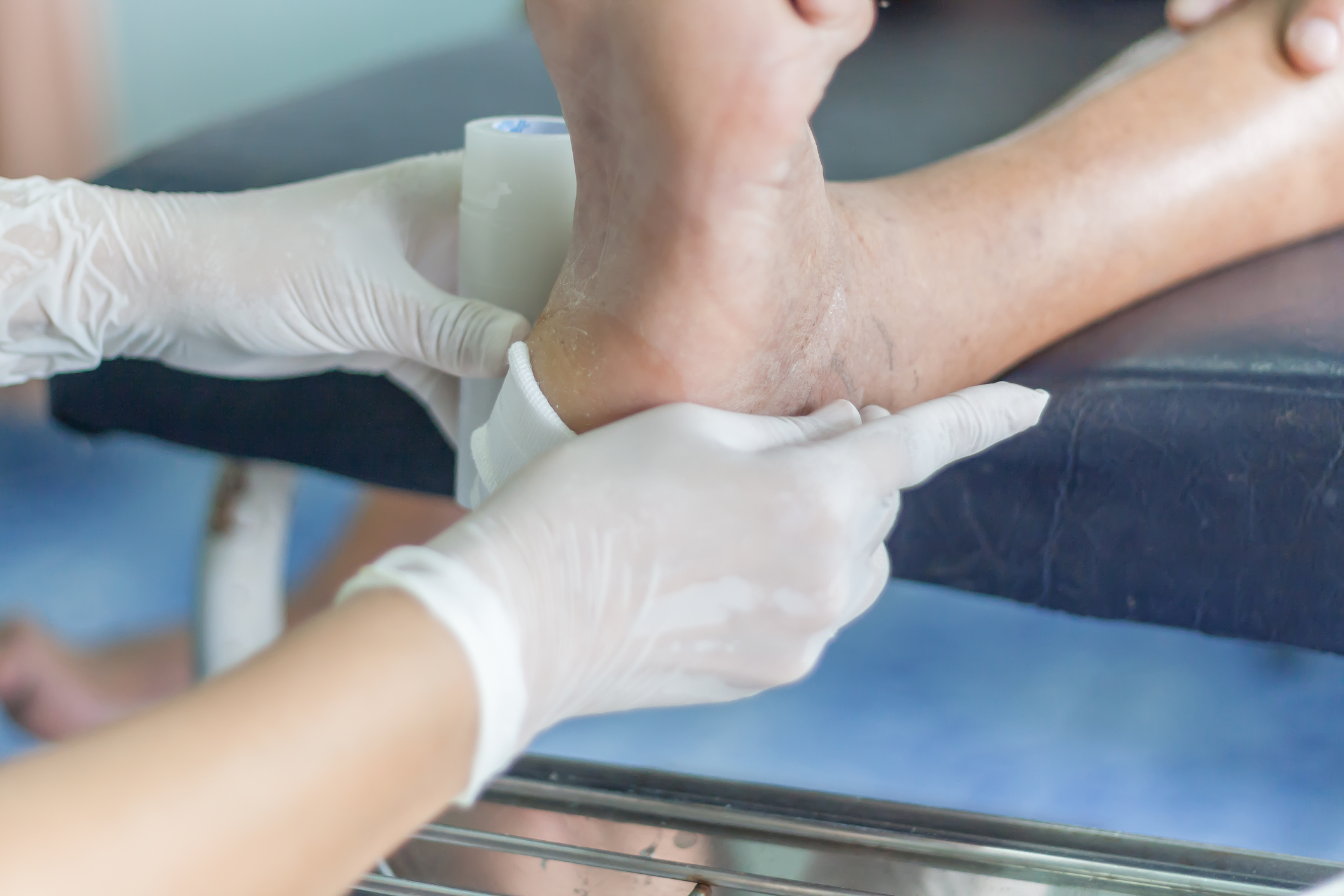 The Primary Factors That Make Your Wound Not Heal