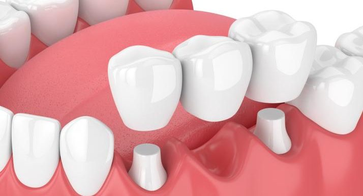 Restore and Enhance Your Smile with Crowns & Bridges Specialists in California