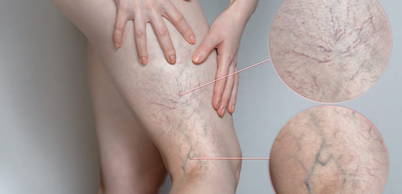 Causes and Treatment Options for Varicose Veins