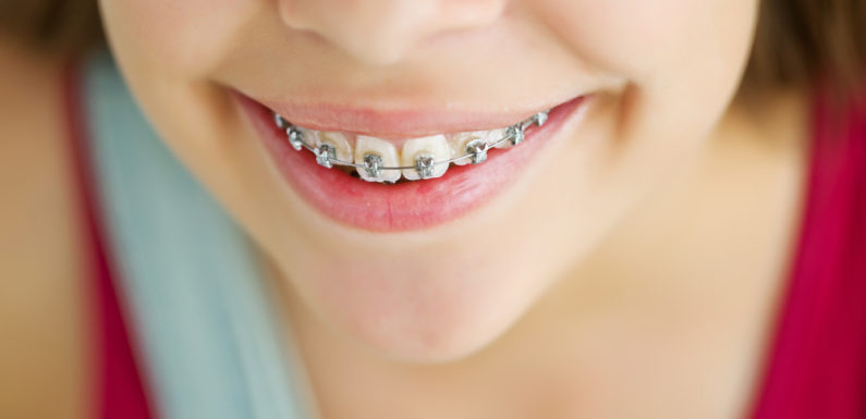 Gentle and Helpful Children's Orthodontic Treatments in New York