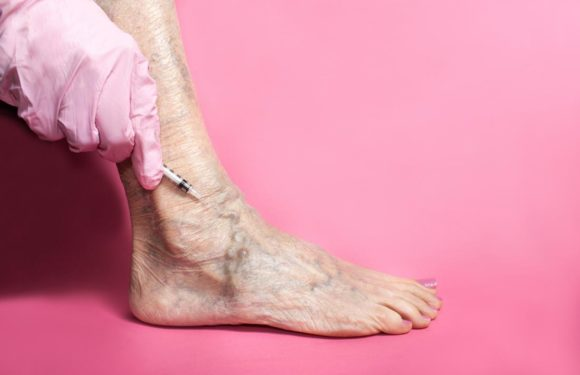 The Procedure for Sclerotherapy