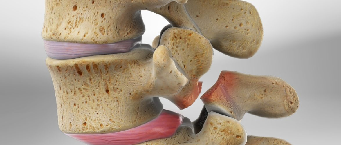 Here is What You Need to Know About Spondylolysis